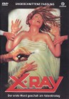 X-Ray - Der erste Mord geschah am Valentinstag (Uncut) OoP