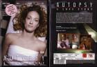 Autopsy - A Love Story  (3905255,NEU)