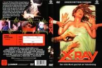 X-Ray - Der erste Mord geschah am Valentinstag - Uncut