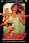 X-Ray - Der erste Mord geschah am Valentinstag DVD (N)