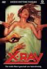 X-Ray - Der erste Mord geschah am Valentinstag  (Neuware)