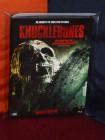 Knucklebones (2016) Shock Ent. Lim. Ed. Cover A