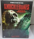 Knucklebones - Blu Ray - Mediabook - Cover A