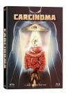 Carcinoma - Mediabook Cover A (Blu Ray+DVD) NEU/OVP